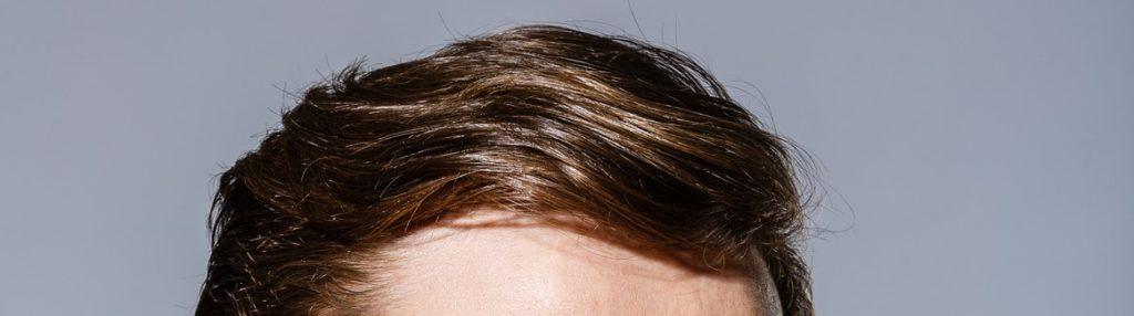 Haaransatz nach Haartransplantation