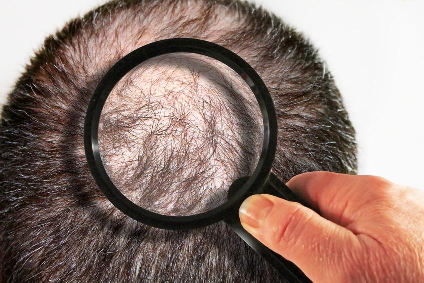 gegen Haarausfall hilft eine Haartransplantation