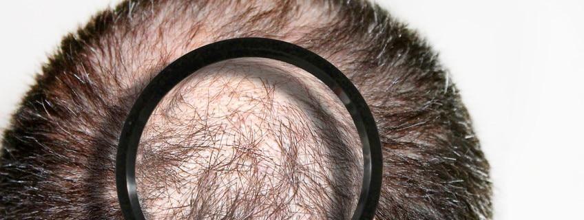 Haarausfall Haartransplantation