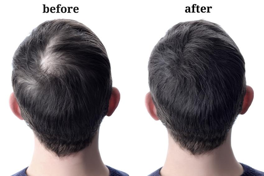Haarverpflanzung