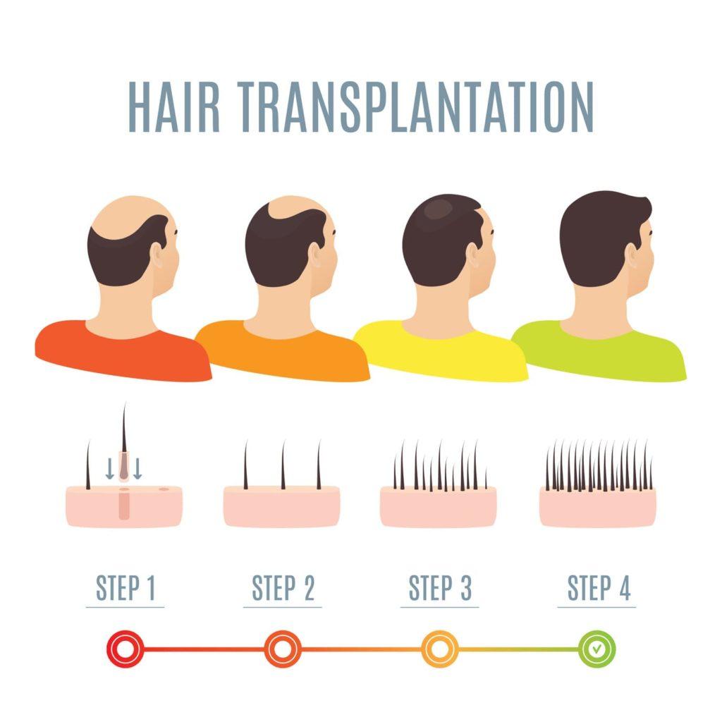 Schritte der Haartransplantation
